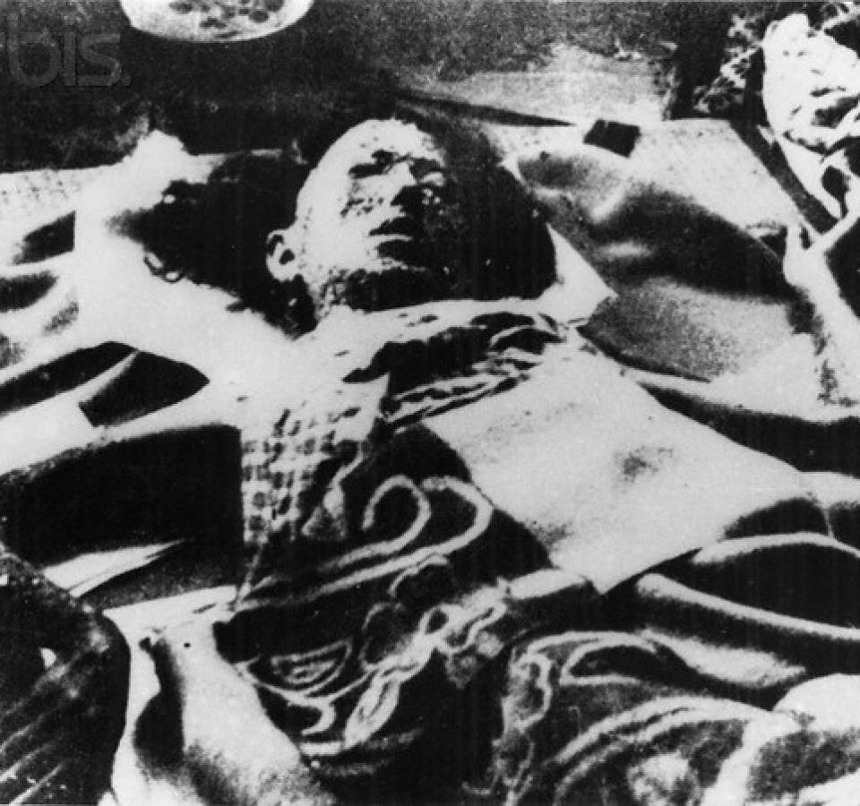 Hiroshima Atom Bomb Victim