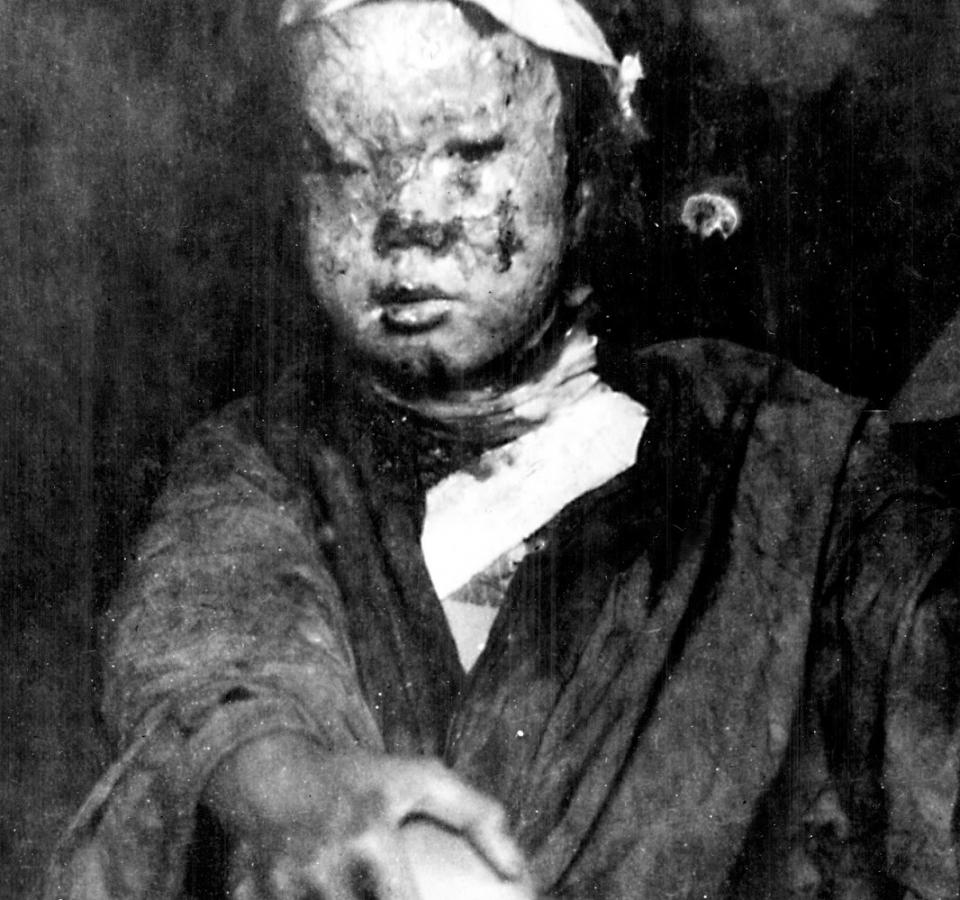 hiroshima child